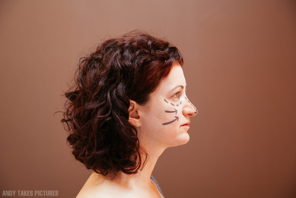 A side profile of a woman with plastic surgery like marks on her face. The background is red. Her hair is brown.