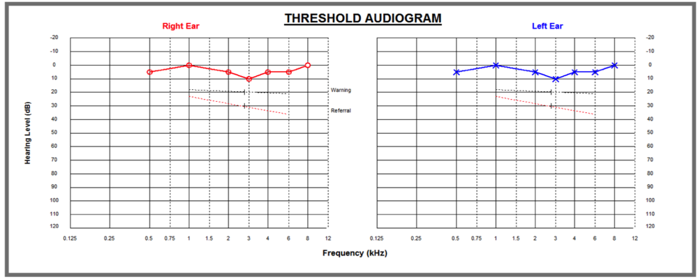 Audiogram of normal hearing