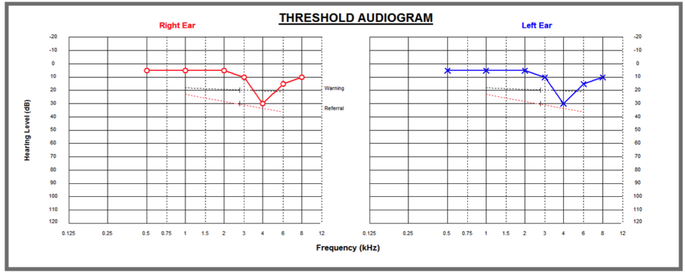 Audiogram Mild Loss