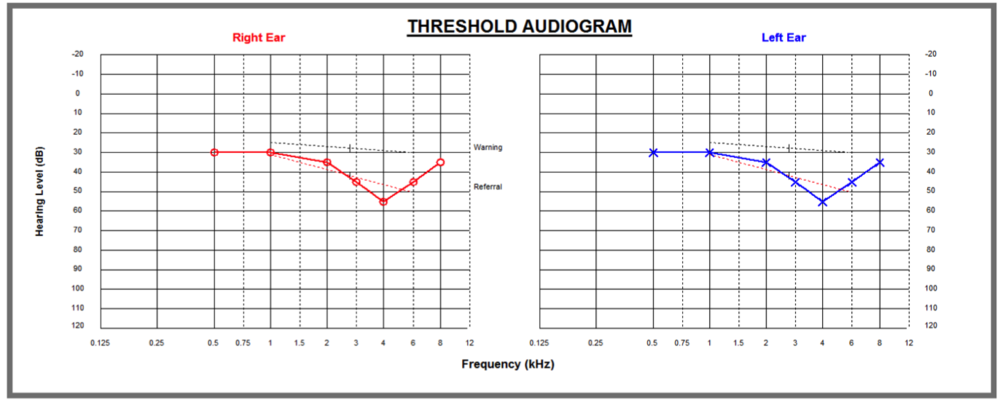 Audiogram Category 2