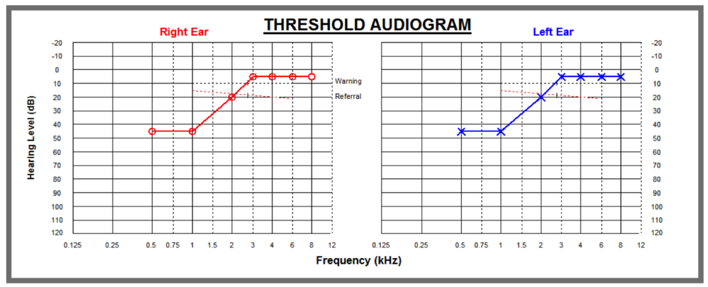 Audiogram - infection losses