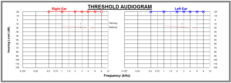 Audiometry result - just pressing button all time.png