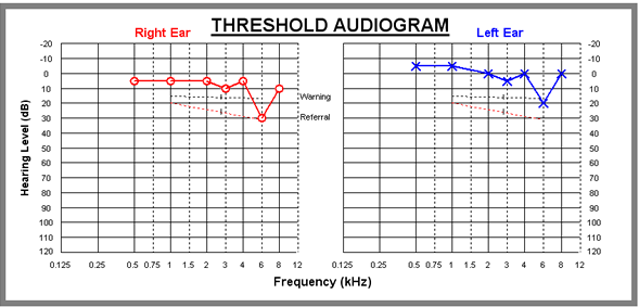 Example audiogram - the graph of an audiometry result.