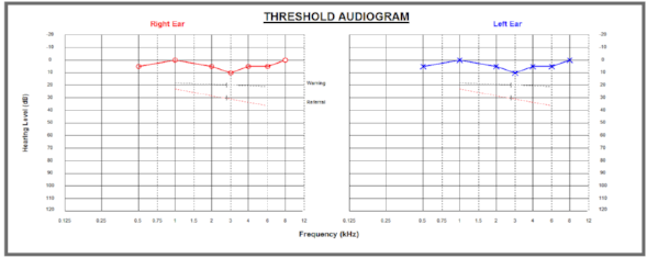 Audiogram Normal hearing.png