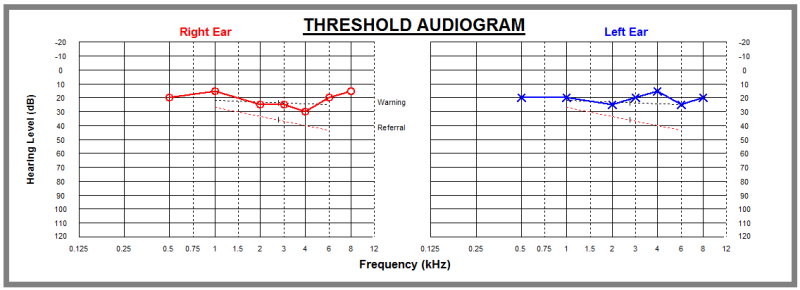 Audiometric test result graph