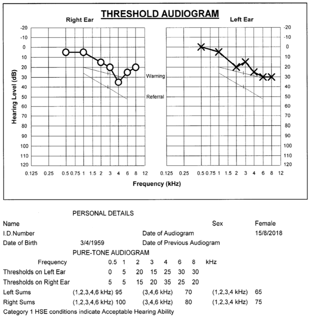 Results from a hearing test - the audiogram
