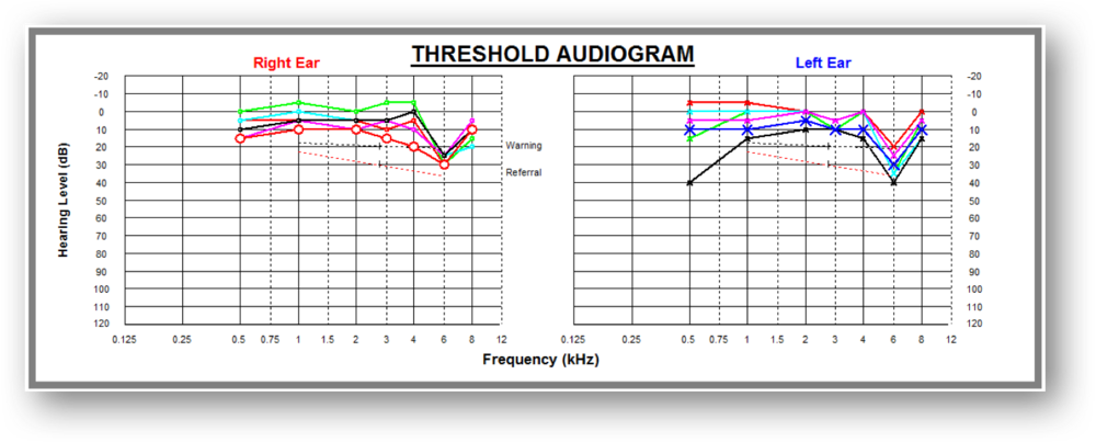 Audiogram with several years of results all shown at once