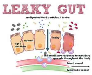 Lookings of a Leaky Gut PC. gillianb.com