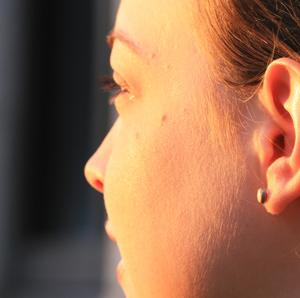 Sun-on-girls-facial-skin