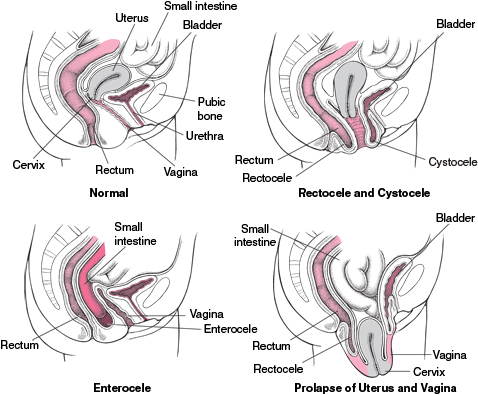 Fitting And Management Of Pessaries For Pelvic Organ Prolapse Full