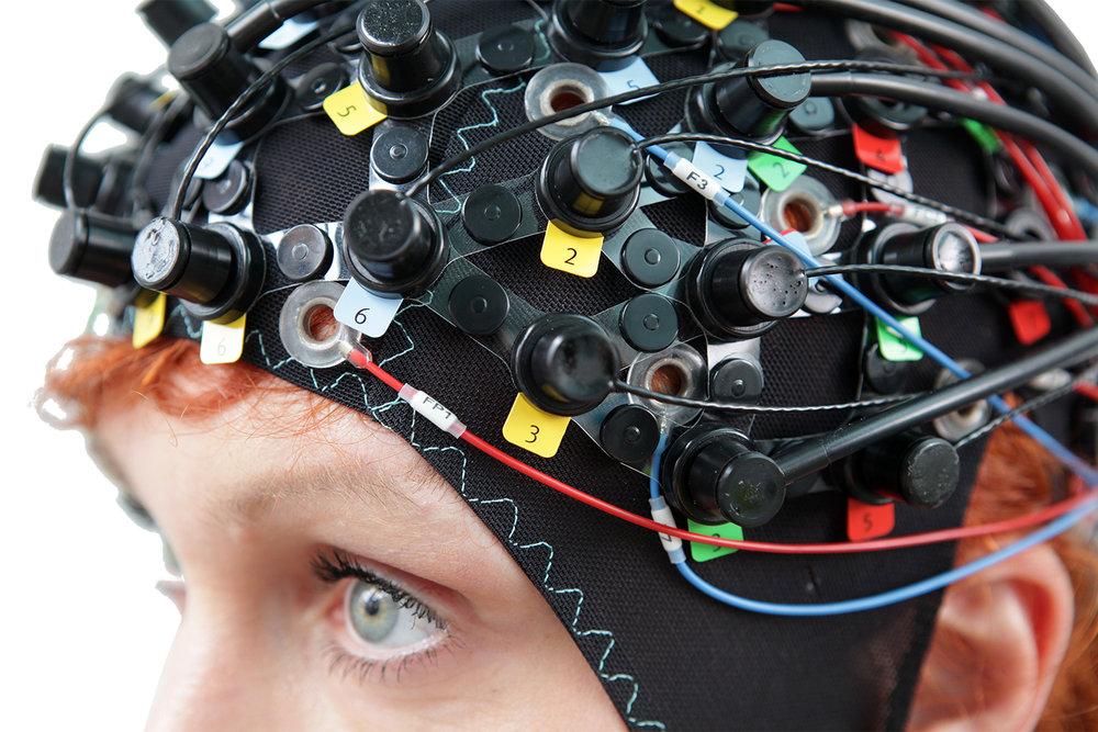 An Integrated NIRx EEG/fNIRS Solution