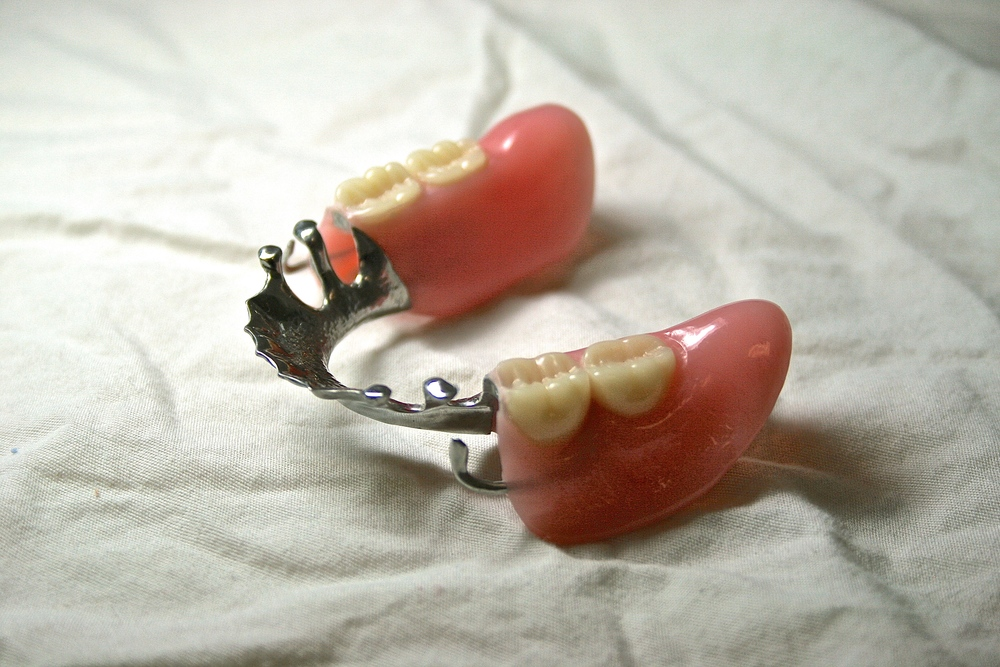 Cast Titanium Partial Denture