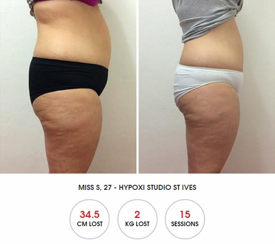 HYPOXI Newcastle: review for fast fat loss