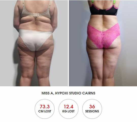 HYPOXI Newcastle: review for how to lose back fat and saddle bags fast