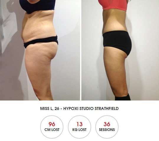HYPOXI Newcastle: review of how to lose fat from belly, bum and thighs quickly and improve skin tone