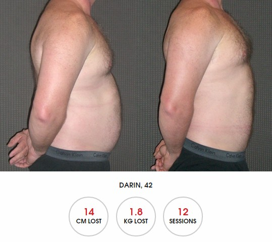 HYPOXI Newcastle: review of how to lose beer belly fast