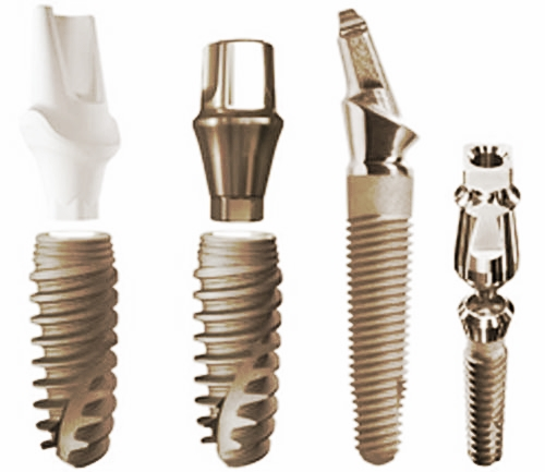 dental implants dental associates auckland