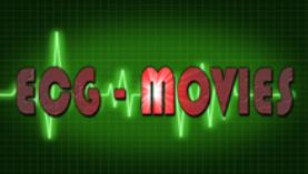 HOW TO INSTALL kodi add on ECG MOVIES