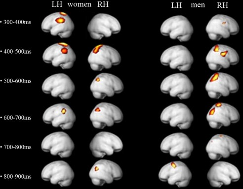 Figure 2 from  the paper  showing the subject's brain response to stimuli rated as beautiful rather than not beautiful. Women (on the left) showed primarily bilateral brain response to visual stimuli at several millisecond stages compared to unilateral for men.