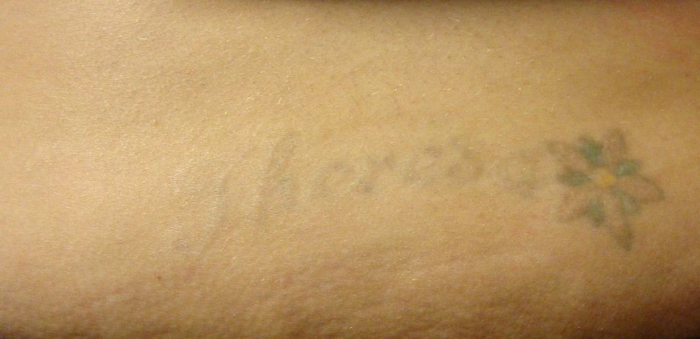 After 3 Sessions of Tattoo Removal