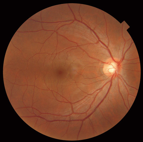 2D image of the back of the eye