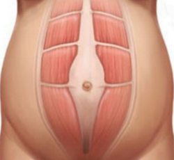 Image 2: Diastasis Recti, where the Rectus Abdominis muscles separate laterally
