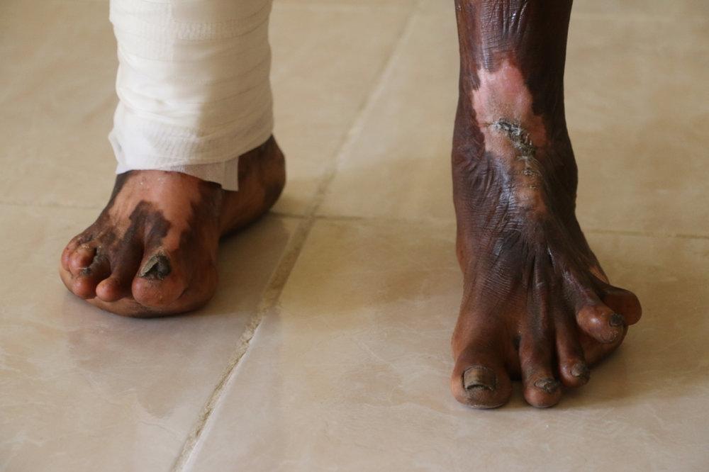 Maizie's feet