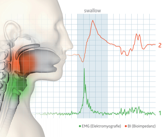 RehaIngest uses BOTH EMG and bioimpedence to accurately detect each swallow