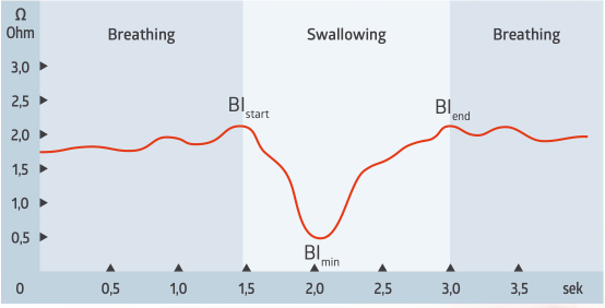 The measurement signal shows a typical curve of a saliva swallow of a healthy subject.  During the swallow, the bioimpedance falls and then rises again after swallowing