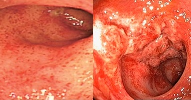GVHD Colitis (Left); CMV Colitis (Right)