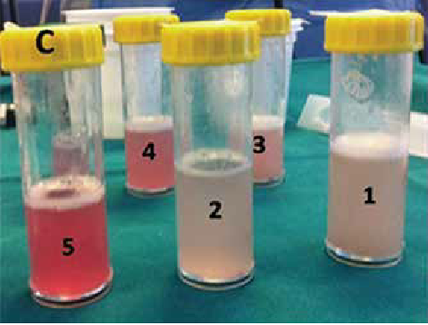 Serial bronchoalveolar lavage aliquots obtained by bronchoscopy, the fluid showing progressively more bloody samples with each subsequent aliquot.