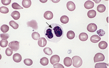 "A  neutrophil with  pseudo-Pelger-Huet nucleus (aka ""Aviator nucleus"" per Dr. Lachowiez given it's sunglasses appearance)  with decreased lobes that are connected by a thin strand giving a ""pince-nez"" appearance. This neutrophil also has markedly reduced granulation, a finding commonly seen in MDS."