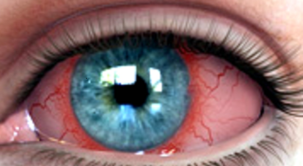 Ciliary Flush: Increased redness around the iris where the cornea and sclera meet (also known as the limbus). This sign is NOT seen in simple conjunctivitis (which spares the limbus) and is seen in iritis (inflammation of the anterior chamber) or in acute angle closure glaucoma.