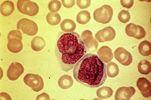 >1% peripheral blasts warrants hematology consultation