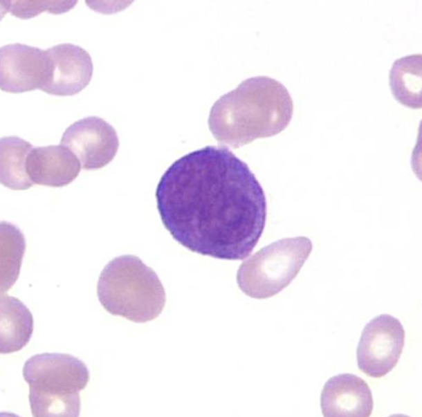 Promyelocytes on peripheral smear: bilobed nucleus with hypergranularity (there is a hypogranular variant) APL accounts for 5-8% of new AML cases. Important to recognize because: * Life threatening coagulopathy is more common in APL * Unique response to all-transretinoic acid-based therapy.  * Cure rates >80% if caught prior to terminal complications and requires a high index of suspicion to diagnose early