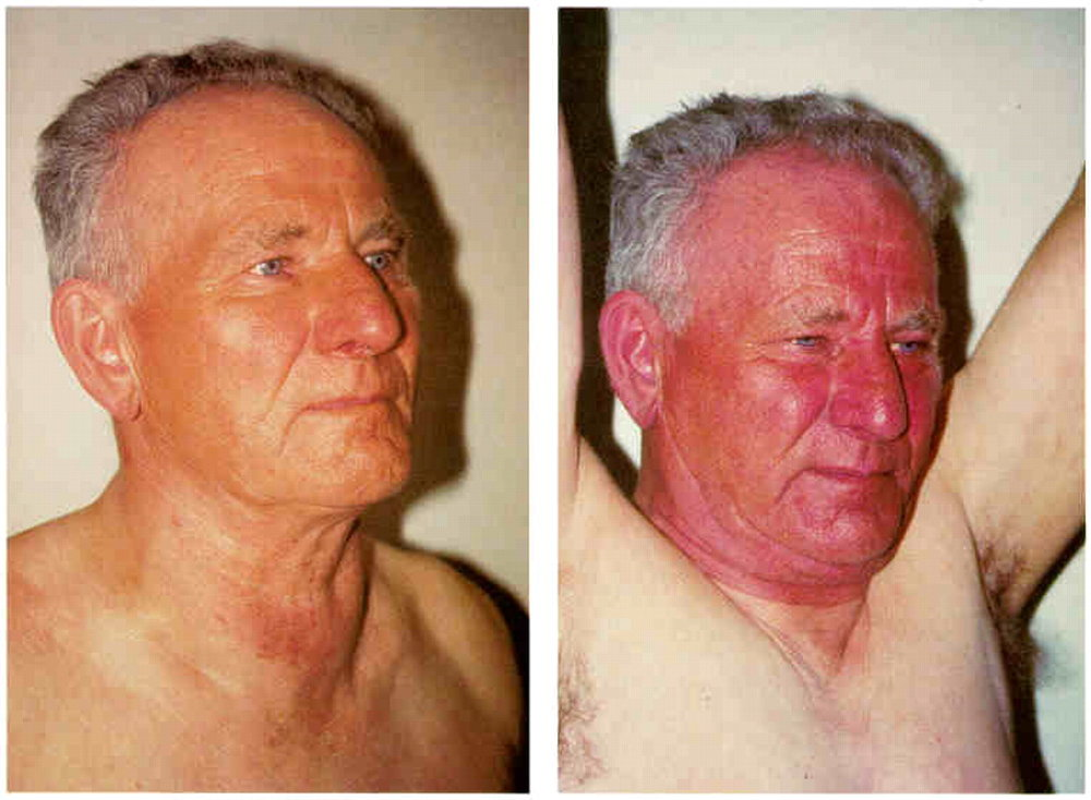 """The rarely seen """"Pemberton's Sign"""" denoting facial swelling and flushing with raised arms in the setting of SVC syndrome. Courtesy Annals of Internal Medicine."""