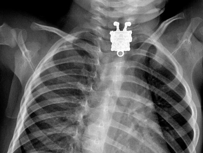 Image from  http://guff.com/some-of-the-strangest-objects-found-in-x-rays