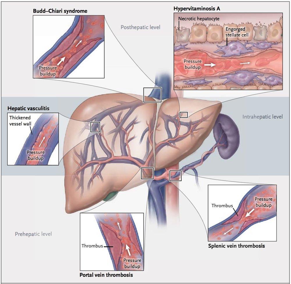 Ascites, Non-cirrhotic portal hypertension — IMRESPDX