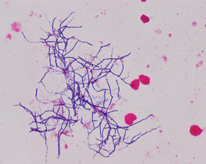 Nocardia: Filamentous branching gram positive rods