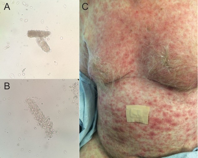 A and B: urine sediment with granular cast (A) and WBC cast (B) suggestive of AIN. C: non-pruritis morbilliform erythematous rash all of which may be seen in a patient treated with nivolumab and ipilimumab for metastatic melanoma. Please refer to the article in  Clinic Kidney Journal  for more information.