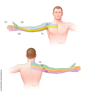 Cervical dermatomes. Image adopted from  Childress and Becker, Nonoperative Management of Cervical Radiculopathy, AAFP 2016 .