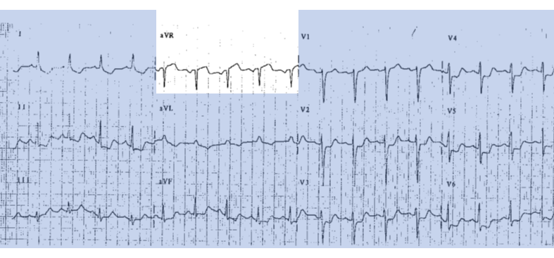 ekg reciprocal change.PNG