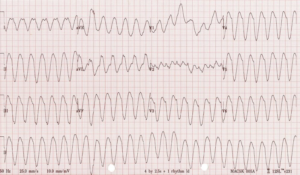 Characteristic ECG findings, courtesy of https://lifeinthefastlane.com/ecg-library/ventricular-tachycardia/