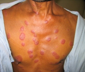 ENL Skin Lesions, courtesy of Kahawita et al. April 2008. Transactions of the Royal Society of Tropical Medicine.