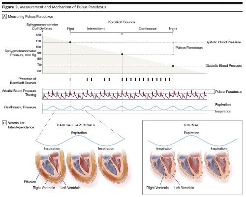 pulsus diagram.png