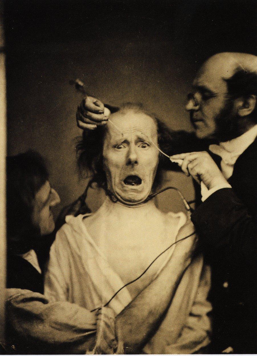 Guillaume_Duchenne_de_Boulogne_performing_facial_electrostimulus_experiments.jpg