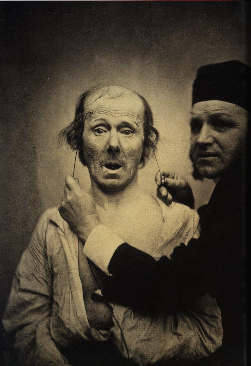 Guillaume_Duchenne_de_Boulogne_performing_facial_electrostimulus_experiments_(3).jpg
