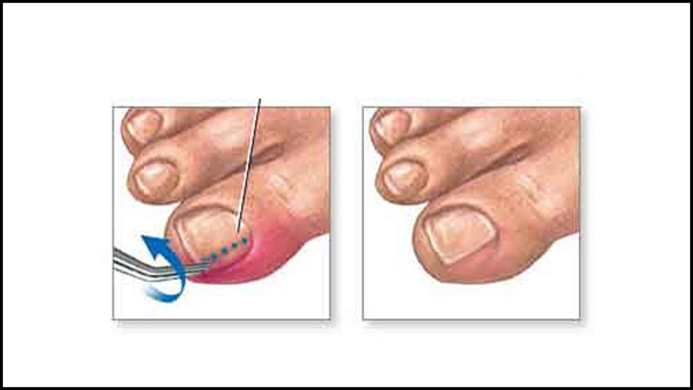 Ingrown Toenail — Podiatrist Foot Specialist - David Joseph, DPM