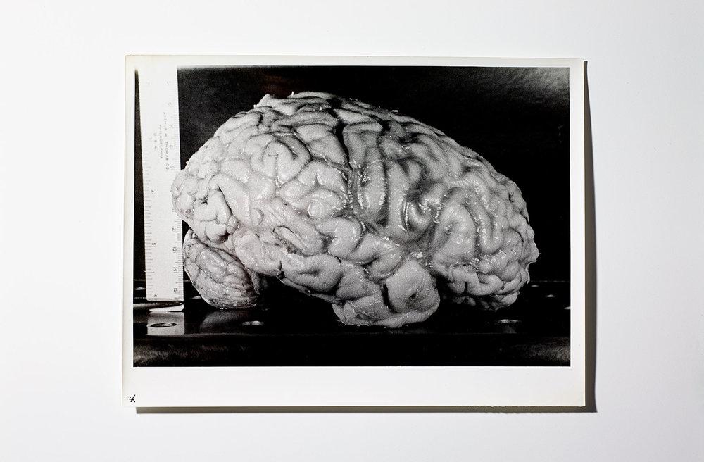 Einstein_Brain_HF_67542_FFS.jpg