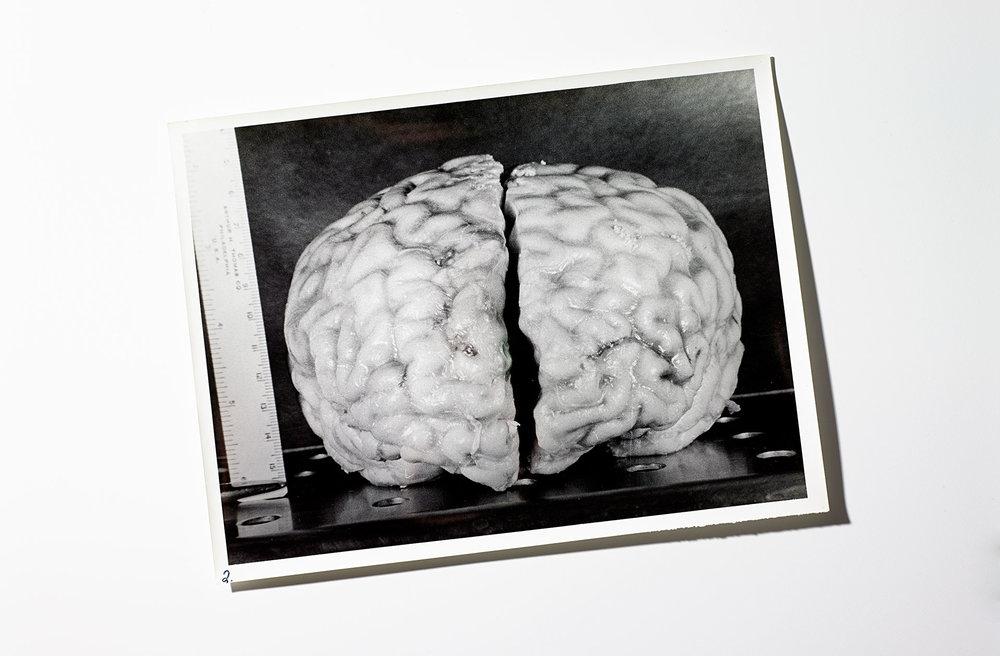 Einstein_Brain_HF_67545_FFS.jpg